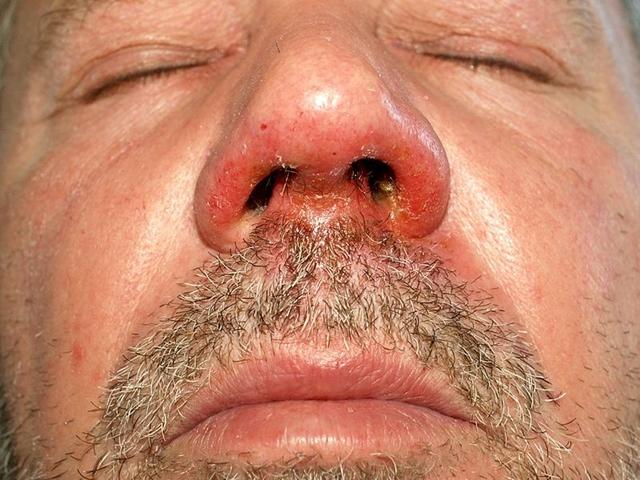 vörös foltok az ajkak körül az arcon