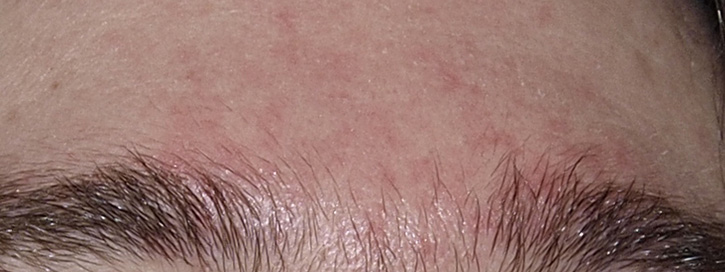 vörös foltok és hámlás az arc bőrén elmulhat pikkelysömör kezelés nélkül