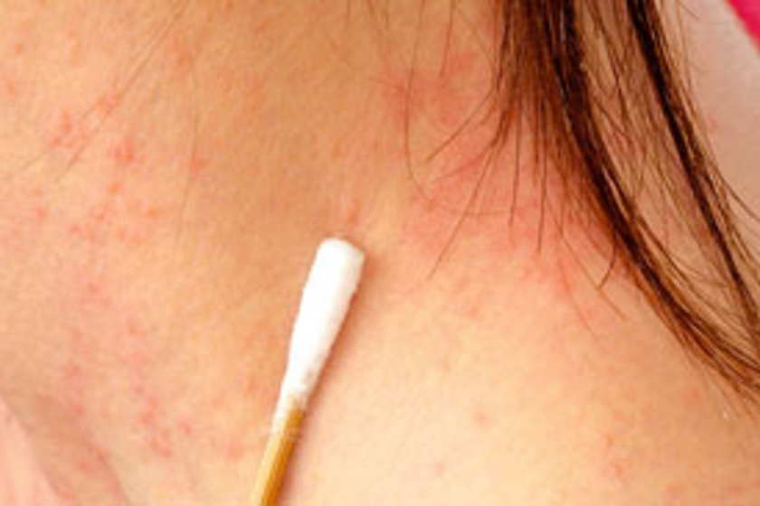 korpásodás és pikkelysömör kezelése vörös foltok a bőrön népi gyógymódok