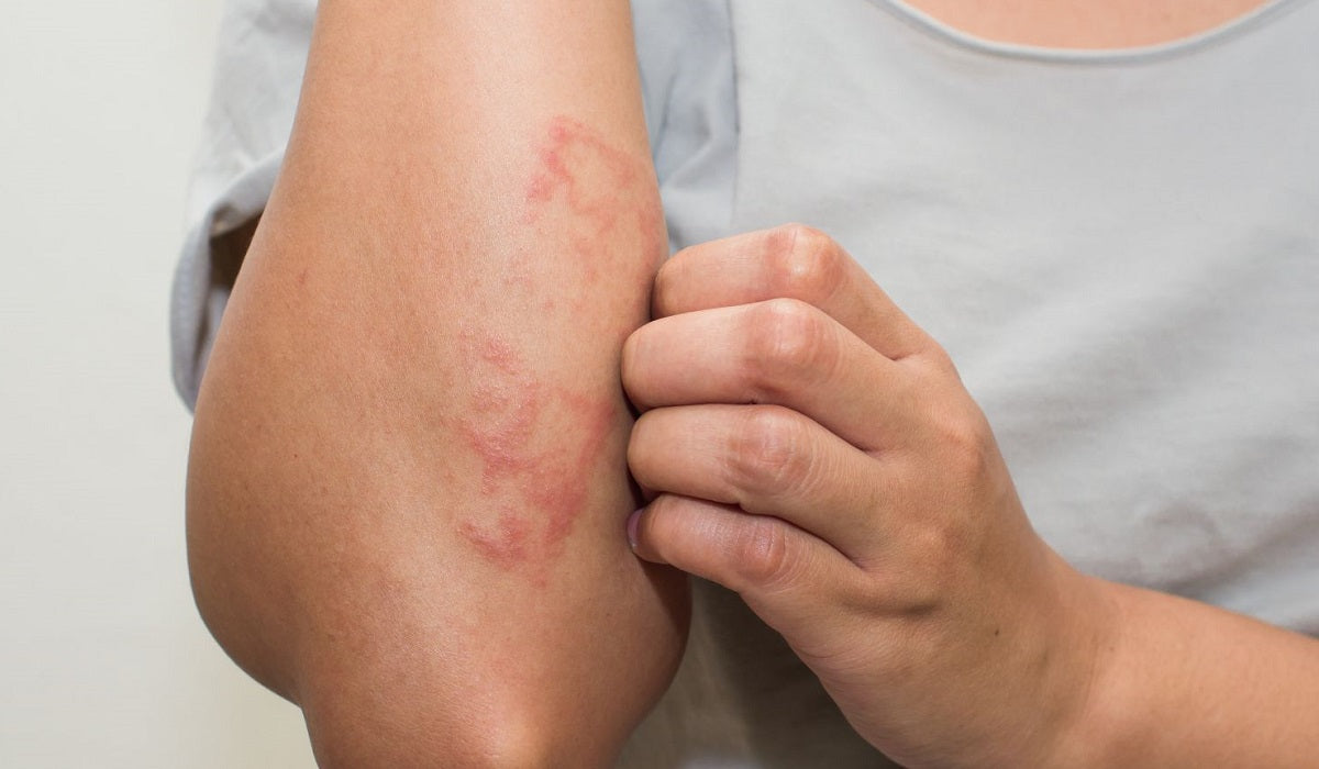 Dermatitis pikkelysömör krém, Bőrnyugtató krém pikkelysömör, ekcéma kezelésére