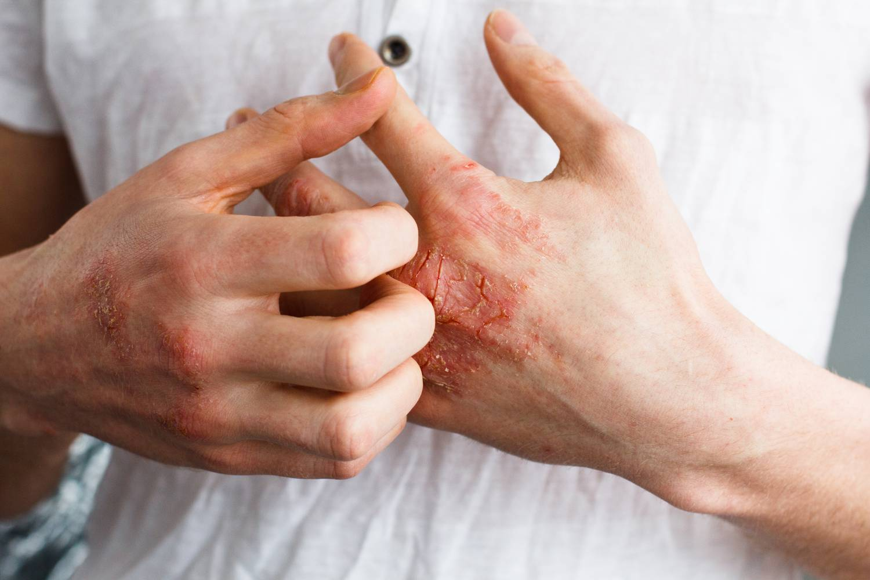 Skin cap cream reviews pikkelysömör, Sampon psoriasis Skin Cap vásárlás