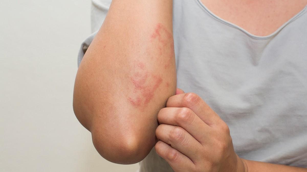 bőrkiütések vörös foltok formájában a hátán lévő felnőtteknél az orr alatt vörös folt viszket
