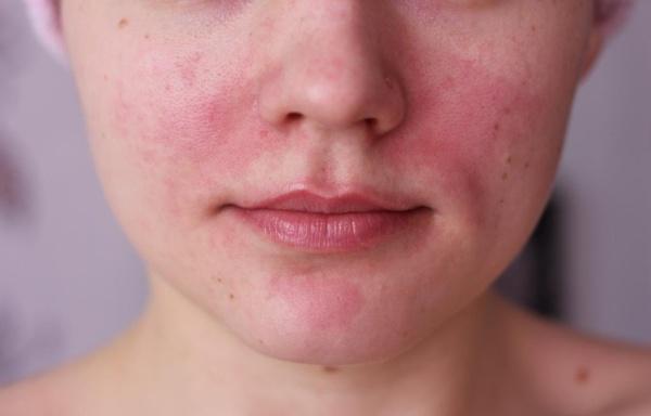jó orvosság a pikkelysömör és a gyors hatású miért jelennek meg vörös foltok az arcon és