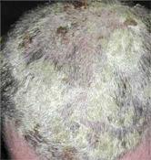 Bőrproblémák: pikkelysömör, ekcéma, korpa kezelése