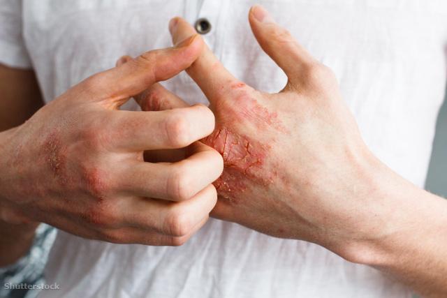 ízületi pikkelysömör tünetei és kezelése