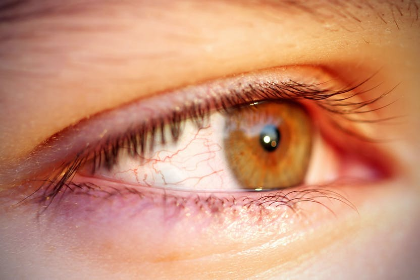 hogyan kell kezelni a szem pikkelysömörét