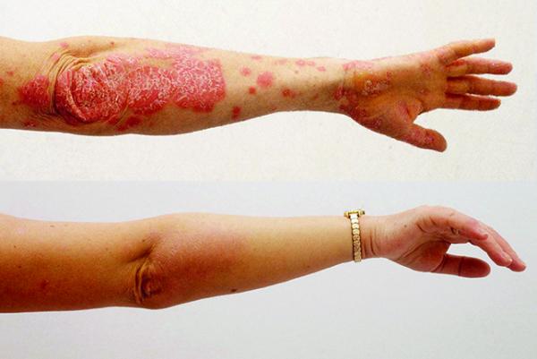 Gyógyítottam a kéz pikkelysömörét a szem alatti vörös foltok lehámlanak és viszketnek, mint kezelni