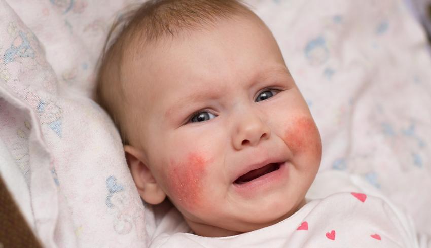 az arcán nagy piros foltok viszketnek