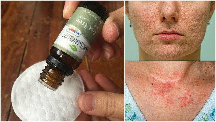 gyógyult pikkelysömör teafaolajjal a lábán lévő vörös foltok kezelést okoznak