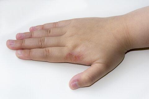piros foltok a kezeken viszketik mi ez