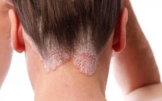 hogyan lehet pikkelysömör kezelésére az arcon otthon
