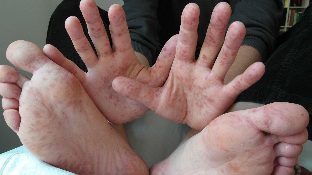 egy nagy piros folt a kézen)