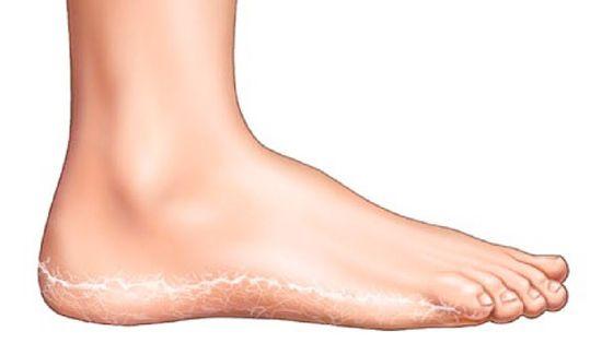 mi a vörös folt a lábán