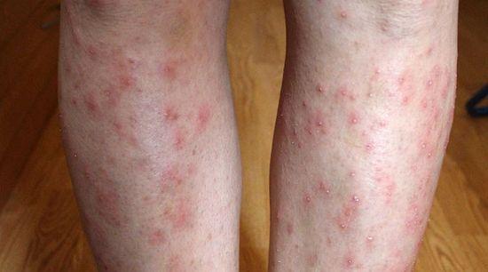 piros, duzzadt foltok a lábakon, ha megnyomják, fájnak