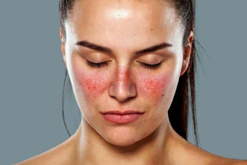 vörös folt jelent meg az arcon és égő érzés)