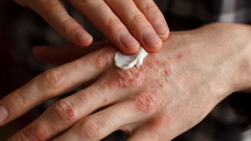 hogyan lehet gyógyítani a pikkelysömör hagymával kiütés a lábakon vörös foltok formájában egy felnőtt viszket