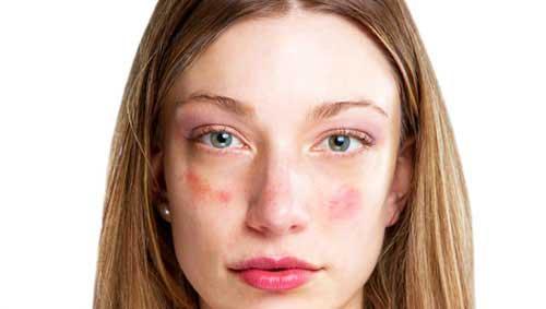 pikkelyes foltok az arcon vörösek)