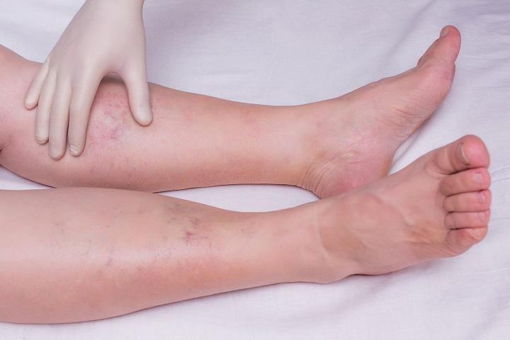 vörös folt és duzzadt láb