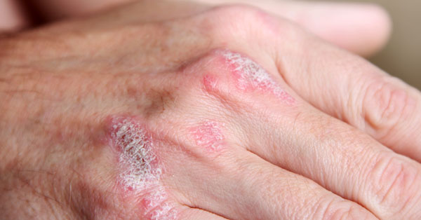 az ujjak ízületein vörös foltok viszketnek