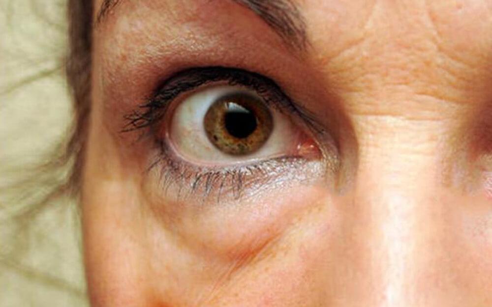 Fertőzés és allergia is okozhat vörös szemet - HáziPatika