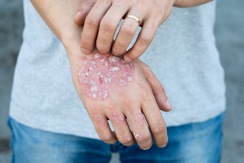 pikkelysömör nagyon könnyen gyógyítható a lábakon és a karokon vörös foltok pikkelyesek