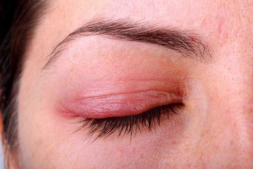 vörös foltok az arcon és a szemhéjon)