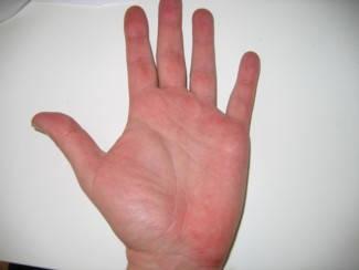 kezek viszketnek és vörös foltok jelennek meg kezelés olcs gygyszer pikkelysömörre a fejn