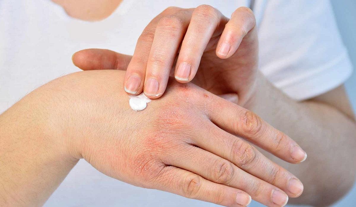 gyógyítja a pikkelysömör gyógyszert pikkelysmr kezelsre