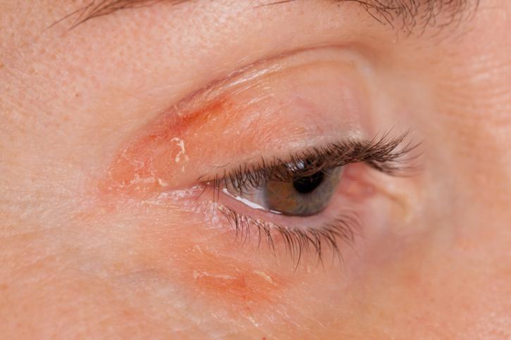vörös foltok az arcon edzés közben