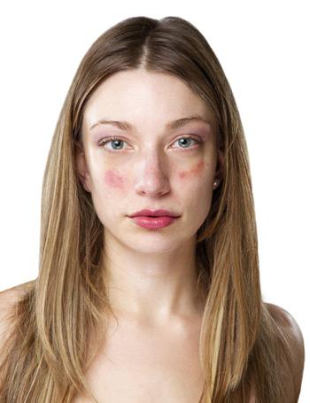 Vörös foltok a bőr duzzadásával. Sütik használata
