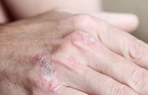 Pikkelysömör végleges tünetmentesítése - Excimer kezeléssel