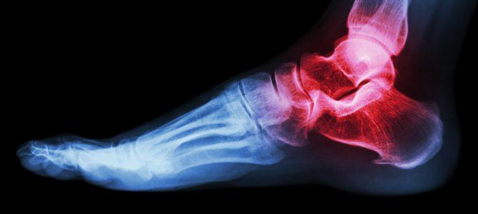 Általános tudnivalók a csontrákról | cumberland.hu