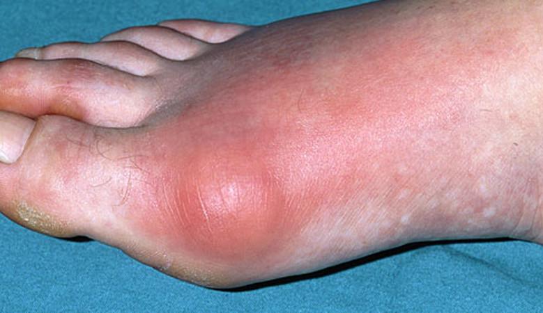 a lábujjak hegyei vörös foltok bőrdaganat lelki okai
