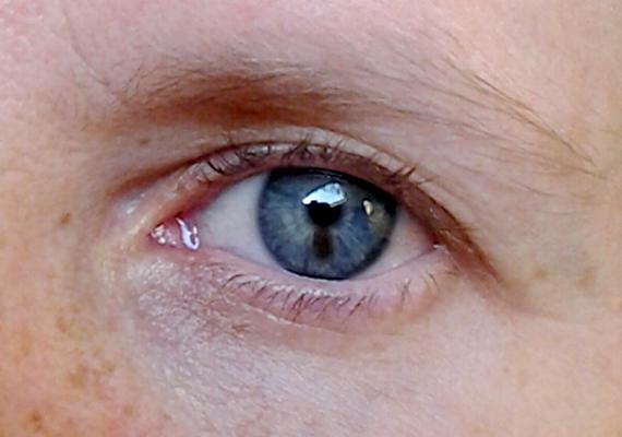 az alsó szemhéjon vörös foltok hámlanak le)