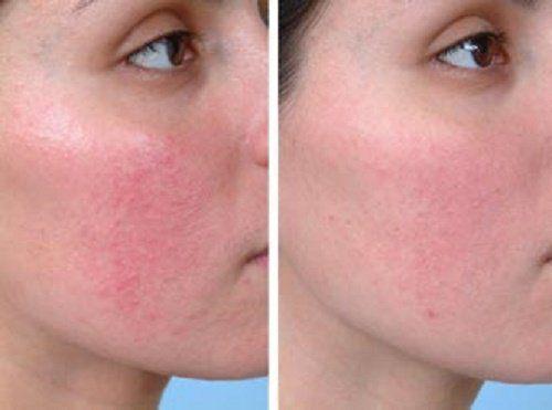 Irritáció az arcon vörös foltok Rozácea - az arcon levő piros foltok kezelése