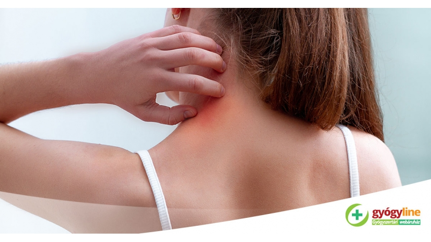elidel a pikkelysmr kezelsben vörös foltok jelentek meg az arcon és a nyakon