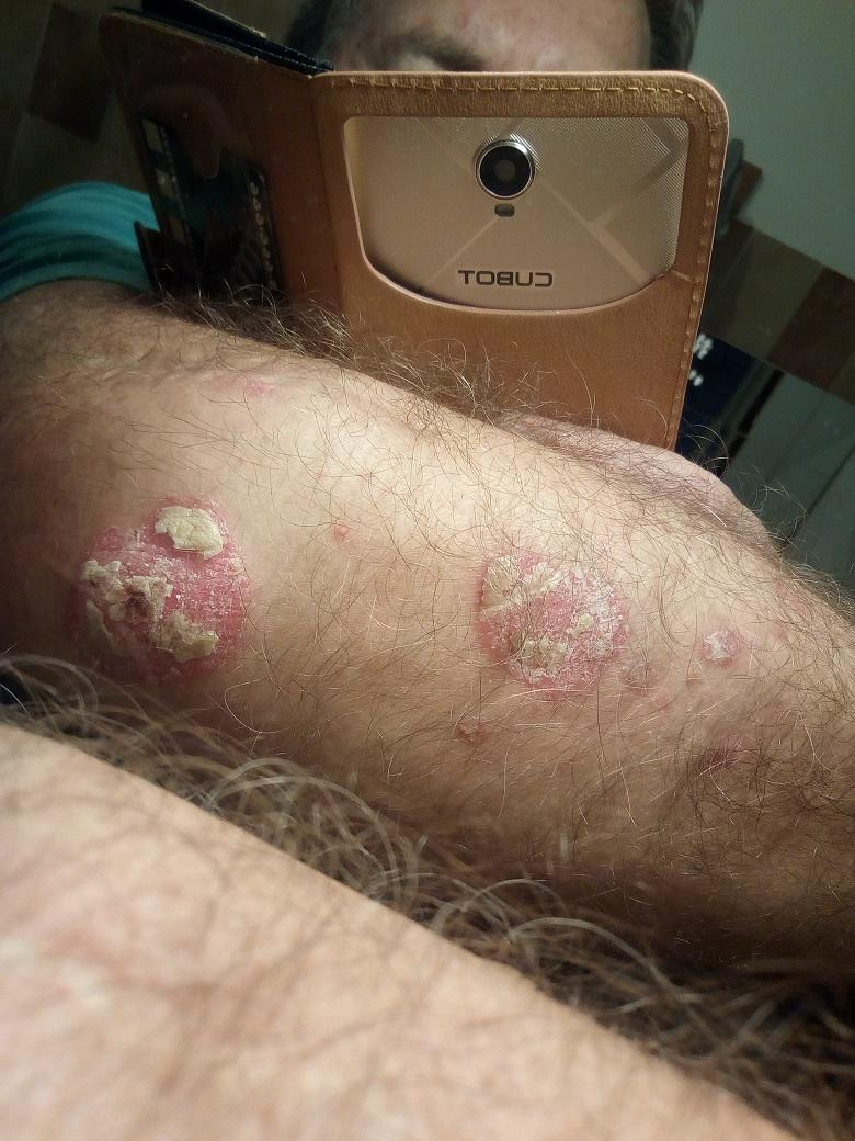 psoriasis flare up medication