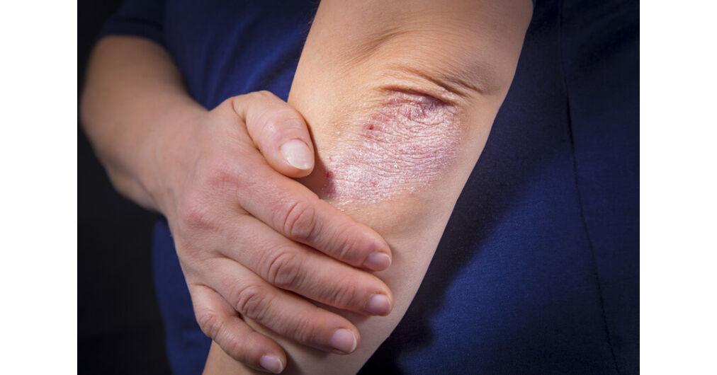lehetséges- e a pikkelysömör gyógyítása összeesküvésekkel az arcát apró piros foltok borítják