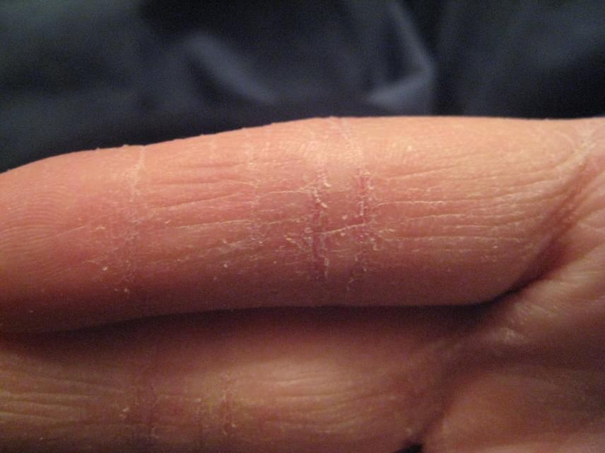 piros foltok jelentek meg az ujjakon fotó hogyan kell kezelni