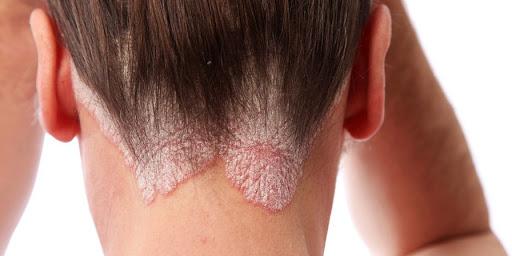 korpa pikkelysömörhöz a fejbőr pikkelysömörének okai és kezelése