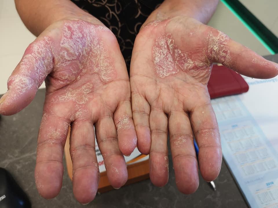 száraz vörös foltok a kezén viszketnek