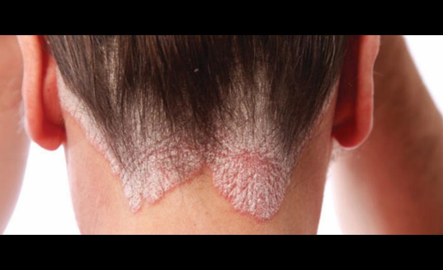 felbukkanó vörös foltok az arcon és viszket cosmoenergy pikkelysömör kezelése