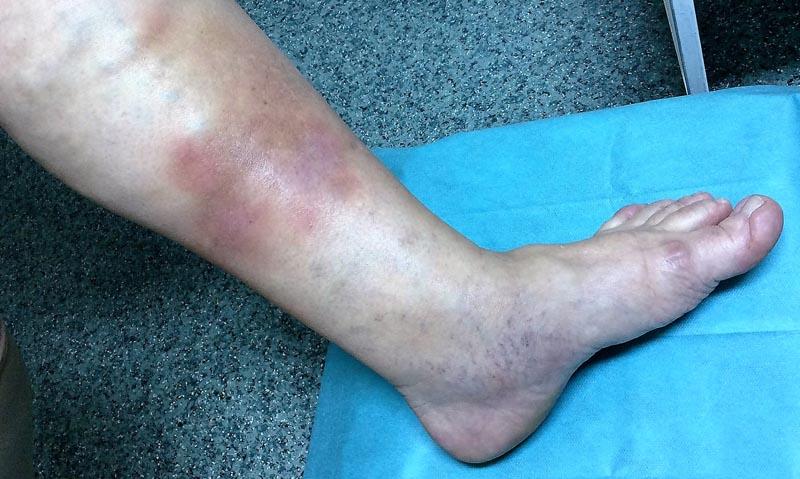 duzzadt vörös folt a lábán hogyan kell pikkelysömör kezelni otthon a lb
