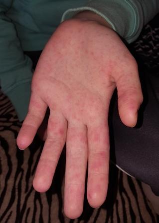vörös foltok jelentek meg az ujjakon)