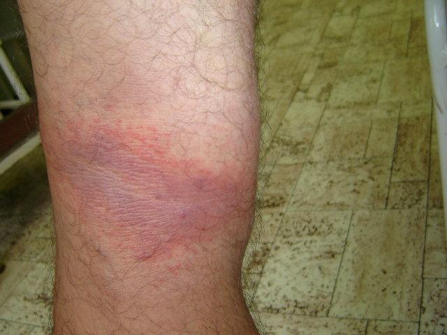 piros folt az oldalon fáj és viszket)