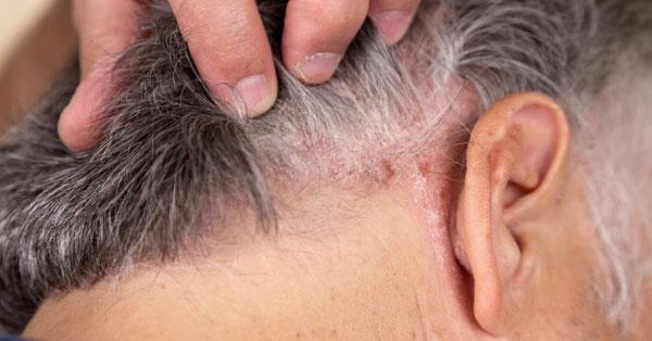 hogyan lehet meggyógyítani a pikkelysömör fején otthon örökre