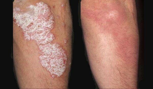 a pikkelysömör súlyosbodása népi gyógymódok vörös foltok a comb belső oldalán a nők kezelésében