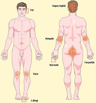vörös foltok bukkantak fel a lábakon és viszketnek rovar pikkelysömör kezelése