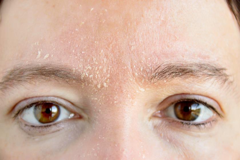 pelyhes vörös foltok az arcon kacsa pikkelysömör kezelése