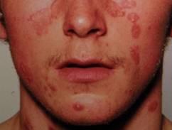 pikkelysömör arthropathic forma kezelése az arcon a bőr száraz vörös foltokkal